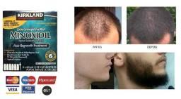 Minoxidi ( Tratamento de Calvície e Barba)