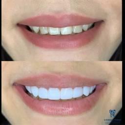 Dentista- Facetas de Resina