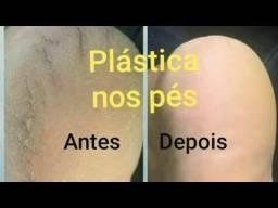 ESPECIALISTA PLASTICAS DOS PÉS