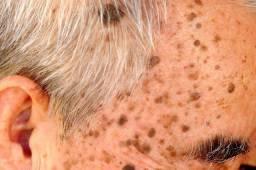 Remoção verrugas e sinais