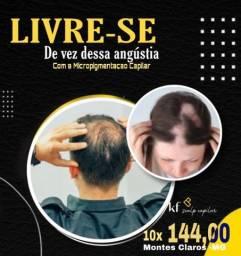 Título do anúncio: Micropigmentação capilar