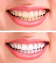 Clareador dental orgânico está em Ariquemes