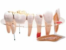 Modelos de Dentes