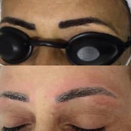 Laser Remoção de tatuagem e micropigmentação