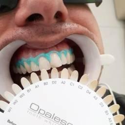 Prótese Clareamento Dental Implantes Coroas de Porcelana