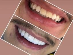 Título do anúncio: Facetas e lentes de contato dental