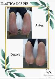 Plástica nos pés *EM PROMOÇÃO*