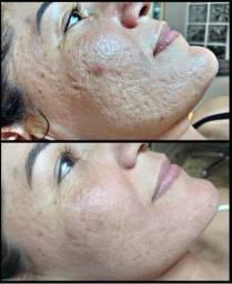Tratamento de cicatrizes