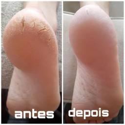 Plástica nós pés