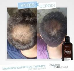 Shampoo cresce cabelo