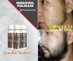 Minoxidil Foligain - Importado USA