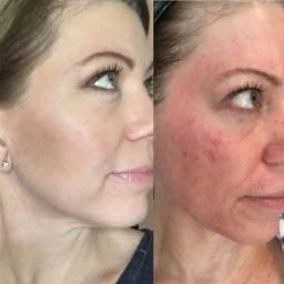 Microagulhamento facial Tratamento Acne!! Manchas!! Rejuvenescimento