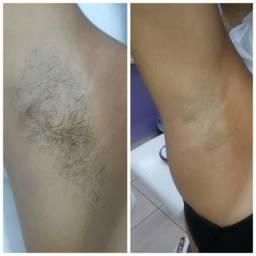 Promoção de depilação