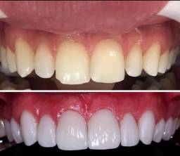 Vagas para auxiliar odontológico
