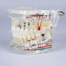 Modelo para Dentistas / Odontologistas ( Implantes/Protese Fixa /Coroas / Pontes )