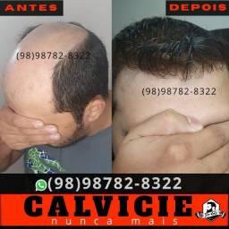Implante Capilar em Parnaíba Piauí e Terezina