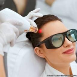 Tratamento a Laser para Calvície ABC Paulista