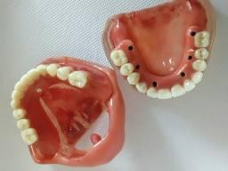 Mostruário odontológicos sobre implantes