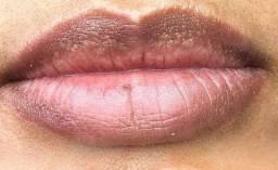 Lábios escuros