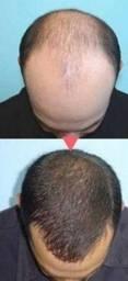 Acabe com queda de cabelo