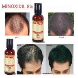 *** MINOXIDIL ***