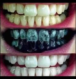 Gel dental com carvão ativado