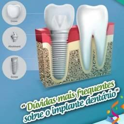 Implante dental com ótimos resultados e ótimos preços nos ligue ou fale conosco