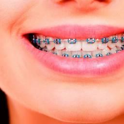Aparelho Dental Montes Claros