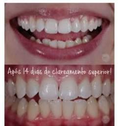 Clareador Dental Natural, em apenas 14 dias ! OBS Fotos não são ilustrativas