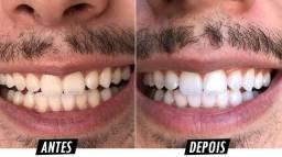 Seus dentes sem manchas e sem amarelão!!