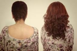 Implante de cabelos