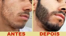 Minoxidil Extra forte ! Fim da calvice ,Alopecia