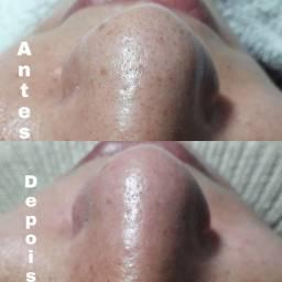Limpeza de pele e Cílios