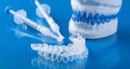 Clareamento dentário top