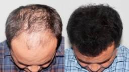Minoxidil Foligain crescimento cabelo feminino