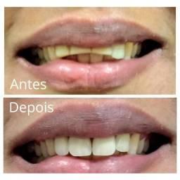 Protético Dentário