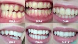 White Max Clareador Dental(Promoção de 247,00 por Apenas 50,00)