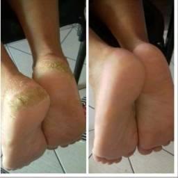 Hidracalo Plástica dos pés