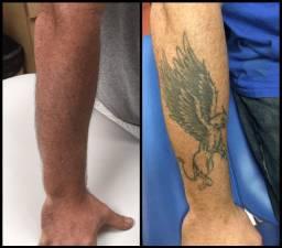 Remoção de Tatuagem a Laser ou Jato de Plasma