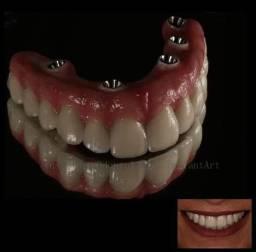 Precisa de Implantes de Dentes Total!!