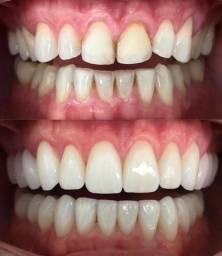 Facetas dentais em Resina micro híbrida