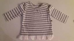 Kit roupas bebe menina