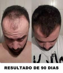 MINOXIDIL IMPORTADO EM LAFAIETE - IMPERDÍVEL