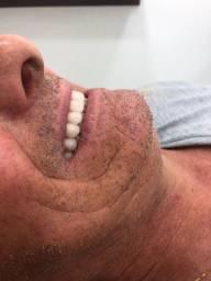 Título do anúncio: Próteses dentária