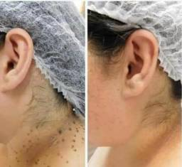 Remoção de verruguinhas,ou verruga!