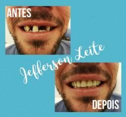 Dentadura prótese Flexível