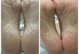 Fluído Restaurador de Rachaduras na Pele - Variação 1<br><br><br>