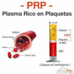 Fabricação de Centrífuga para PRP - Plasma Rico em Plaquetas