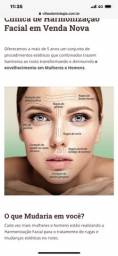 Paciente modelo para Aplicação de Botox