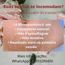 Título do anúncio: Tratamento de Estrias e Cicatrizes em Goiânia